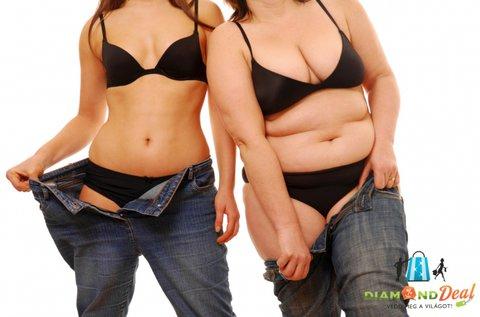 Feszes vonalak 5 alkalmas súlycsökkentő kezeléssel