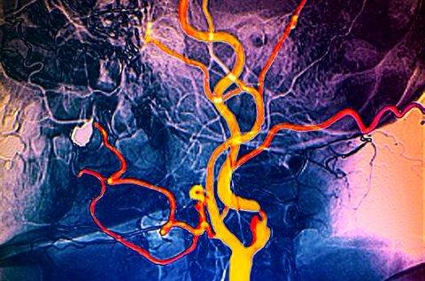 Nyaki erek color Doppler ultrahang vizsgálata lelettel