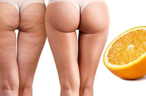 30 perces narancsbőrgyilkos zsírgyalu masszázs