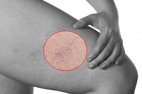 Lézeres hajszálér és rosacea eltüntető kezelés