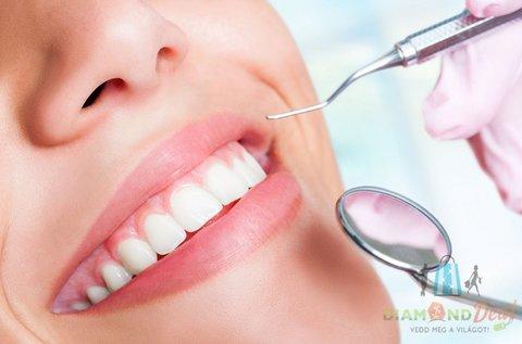 Vakító mosoly fehérítő hatású Airflow kezeléssel