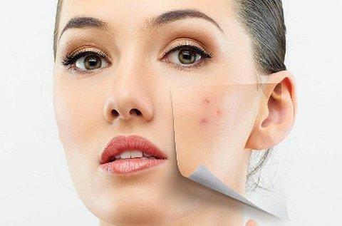 5 lépéses tisztító kozmetikai nagykezelés, tiniknek is