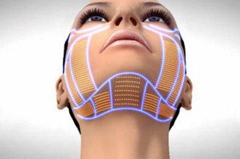 HIFU bőrfeszesítés arcon, tokán és felső testen