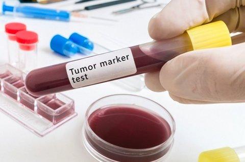 Profi rákmegelőző vizsgálat tumormarker szűréssel