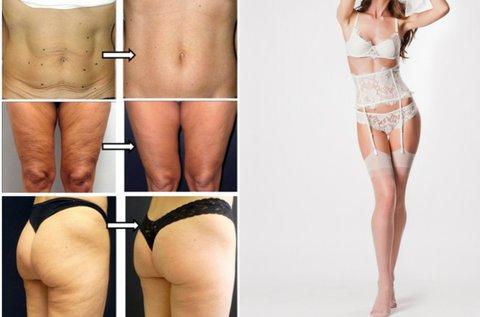 Thermage II. testkezelés választható testtájon