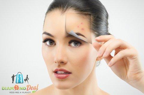 6 lépcsős teljes arctisztítás Dermapenes kezeléssel