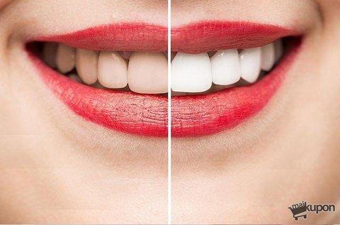 Peroxidmentes fogfehérítés fogkő-eltávolítással