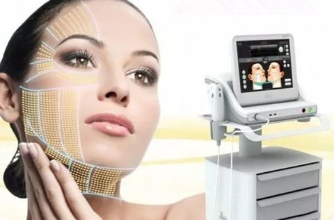 Látványos arcfiatalítás HIFU kezeléssel