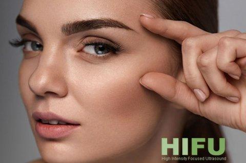 HIFU szarkaláb vagy szemhéj ránctalanítás