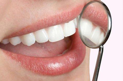 Ultrahangos fogkő-eltávolítás 2 fogíven