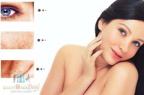 3 alkalmas pigmenfolt, szeplő és hajszálér kezelés