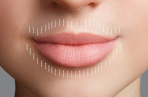 Elbűvölő mosoly HIFU 3D szájkörnyék fiatalítással