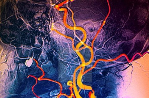 Nyaki erek color Doppler ultrahang vizsgálata