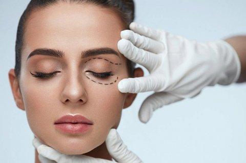 Felső szemhéjak plasztikai műtétje a fiatalabb arcért