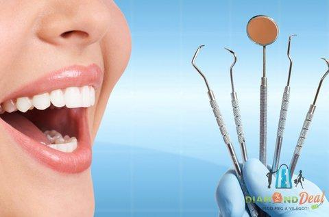 Ultrahangos fogkőleszedés a csillogó fogsorért