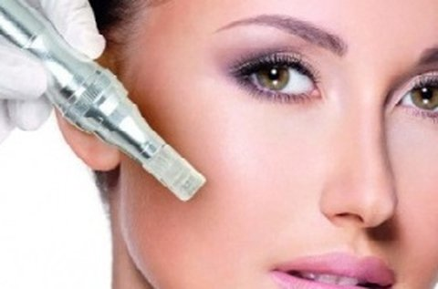 Bőrtónus javítás microneedling arckezeléssel