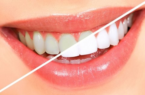 LED-es fogfehérítés fogkő-eltávolítással