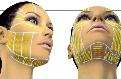 HIFU ránctalanító kezelés teljes arcon