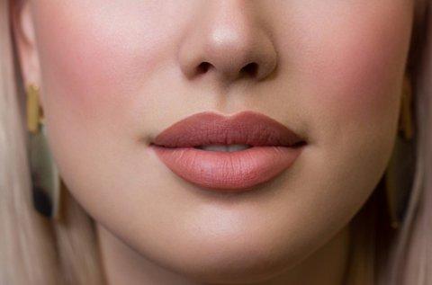 Dús ajkak hialuronsavas szájfeltöltéssel