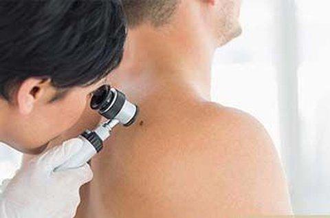 Dermatoszkópos anyajegy- és melanoma szűrés