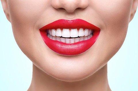 Peroxidmentes fogfehérítés és fogkő-eltávolítás