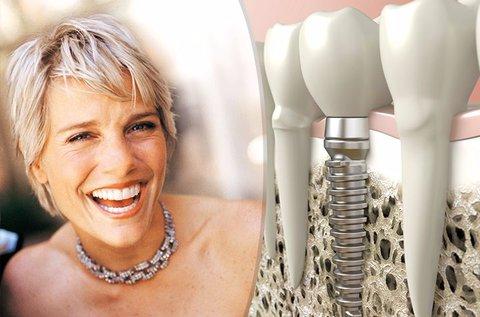 Egyrészes komplett fogimplantátum