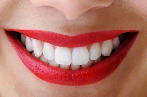 Vakítóan fehér fogak LED lámpás fogfehérítéssel