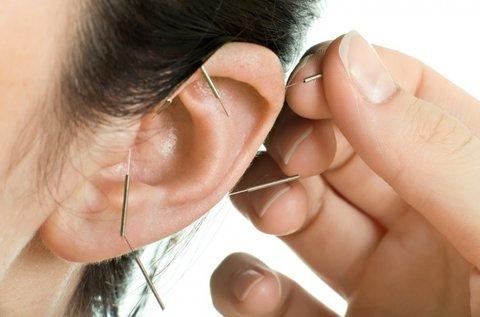 10 alkalmas fogyasztó akupunktúrás kezelés