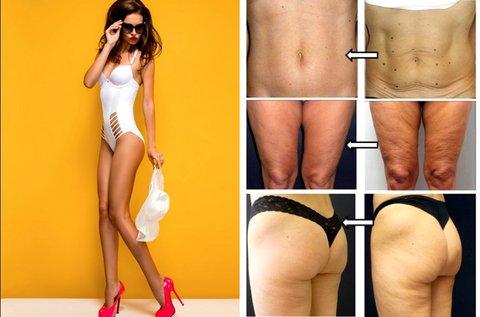 Thermage II bőrfeszesítő és alakformáló testkezelés