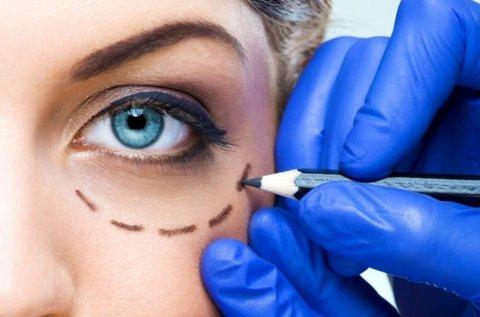 Plazma Penes kezelés szemhéj területén