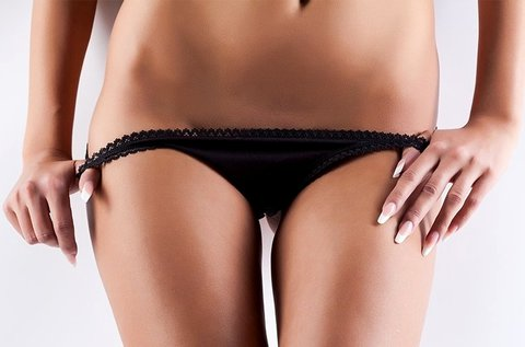 5 alkalmas végleges SHR szőrtelenítés bikinivonalra