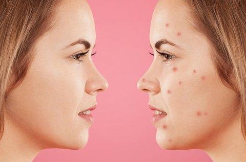 Aknés és pattanásos arcbőr kezelés Dermarollerrel