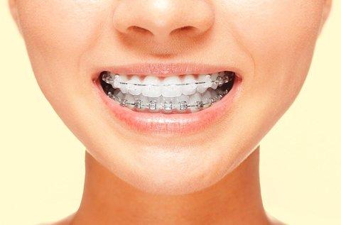 Fém vagy porcelán fogszabályozó készülék