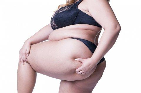 15 alkalmas heti 1 órás intenzív zsírtördelés