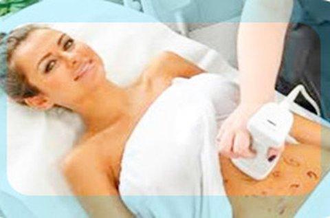 Liposonic Hifu Body fogyasztás és alakformálás
