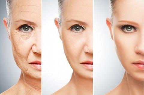 3 alkalmas Thermage II. és Medilite III. kezelés
