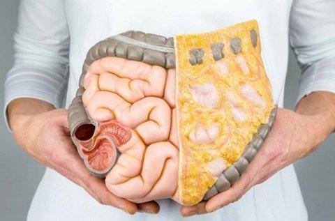 Gyomor és bélrendszer gyulladásainak vizsgálata
