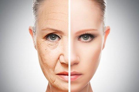 Thermage II. arckezelés kollagénes hidratálással