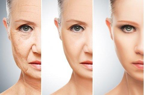 3 alkalmas hyaluronsavas ráncfeltöltő arckezelés