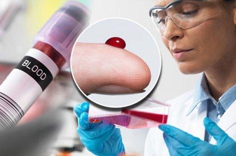 Vércseppanalízis ételintolerancia vizsgálattal