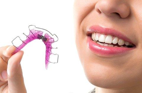Kivehető fogszabályozó készülék 1 fogívre