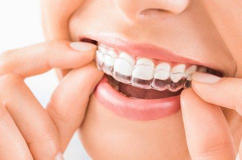 Láthatatlan fogszabályozás 3D tervezéssel