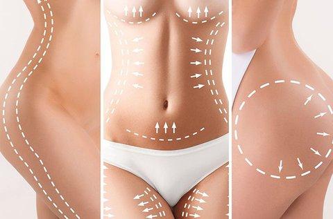 10 alkalmas karcsúsítás mikroáramos zsírtöréssel