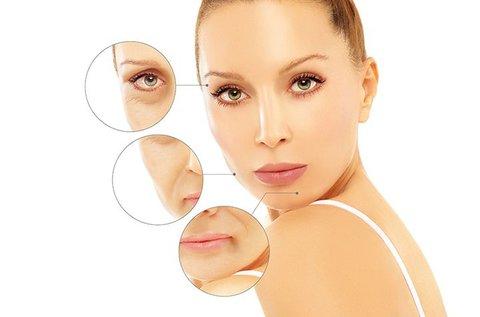 Soft Botox ampullás arcfiatalító kezelés