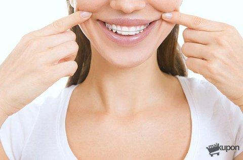Fém fogszabályozó készítése 1 fogívre