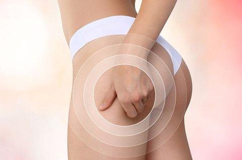 3 alkalmas comb és popsi fókuszált zsírtalanítás