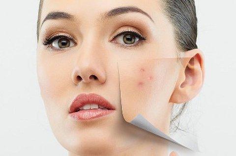 Kozmetikai arctisztító nagykezelés, tiniknek is